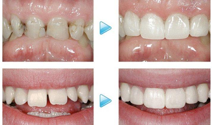 Khi nào cần trám răng cửa và một số lưu ý khi chọn vật liệu trám?