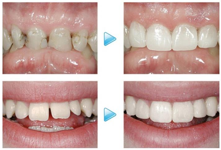 Để cải thiện tính thẩm mỹ cho răng cửa thưa người ta cần phải thực hiện trám răng