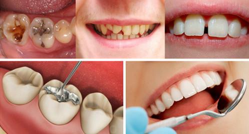 Trám răng thẩm mỹ phương pháp khắc phục khuyết điểm răng hiệu quả