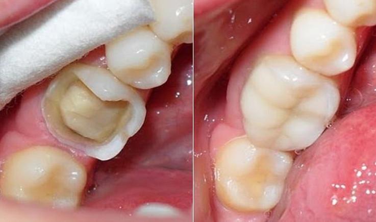 Trám răng là phương pháp điều trị thế nào?