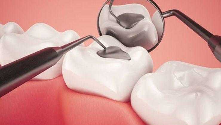 Trám răng ở đâu tốt tại TpHCM? Cách lựa chọn nơi trám răng tốt nhất hiện nay