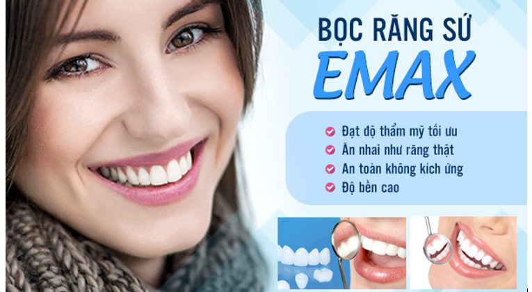 Những thông tin về răng sứ và bọc răng sứ EMAX có thể bạn chưa biết