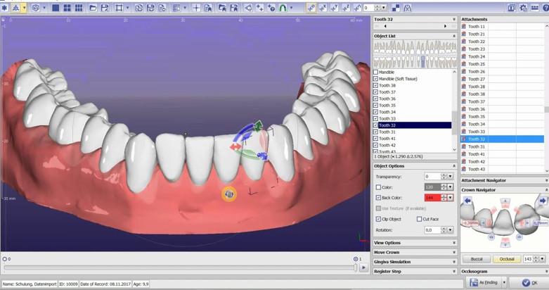 Công nghệ niểng răng 3D Clear đảm bảo độ chính xác đến từng chi tiết