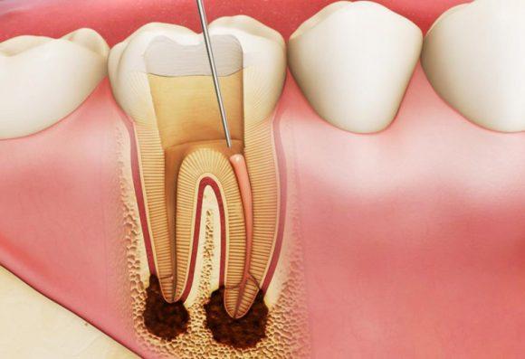 Điều trị lấy tủy răng