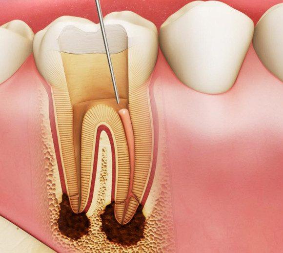 Tìm hiểu cách điều trị tủy răng