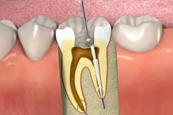 Lấy tủy răng bị hư hỏng