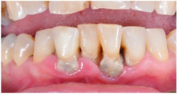 Bệnh nha chu ở răng miệng