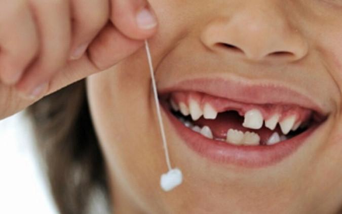 Nhổ răng bằng chỉ sẽ làm rách nướu và gây nhiễm trùng