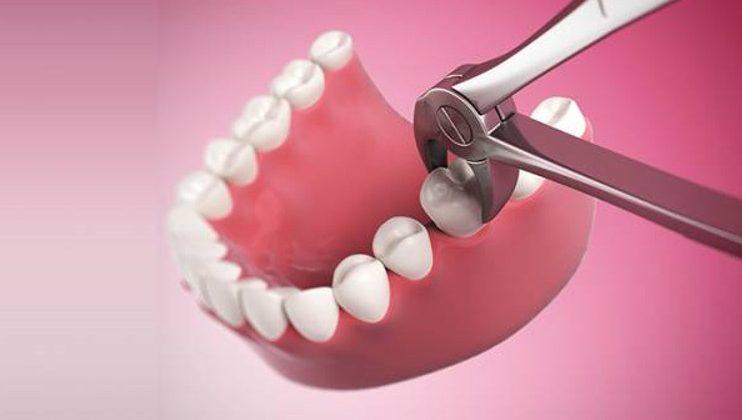 Tìm hiểu tất cả thông tin về nhổ răng hàm