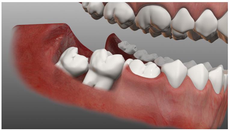 Mức giá nhổ răng khôn phụ thuộc vào răng mọc như thế nào?
