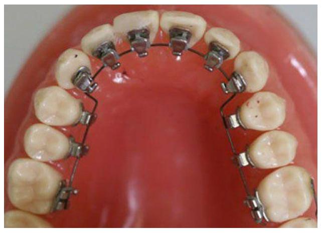 Thời gian niềng răng bên trong ngắn hơn những phương pháp khác