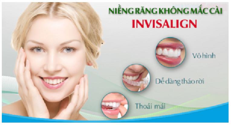 Có nên niềng răng theo công nghệ Invisalign không?