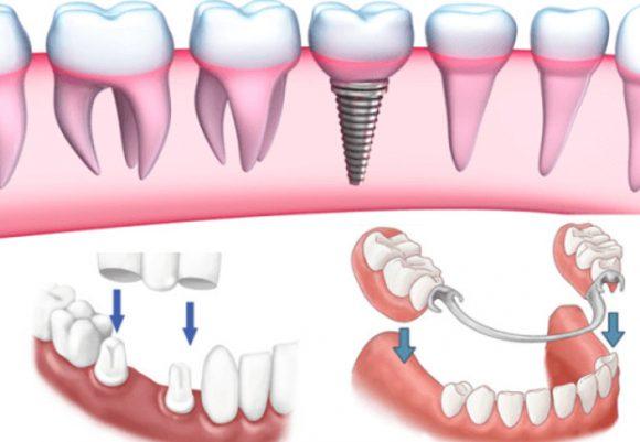 Các loại răng giả