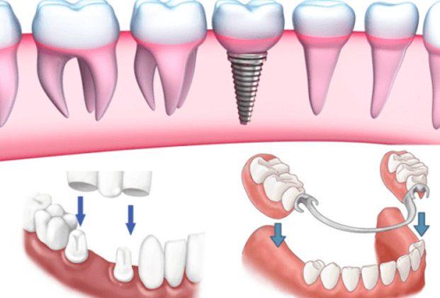 Những điều cần biết khi làm răng giả