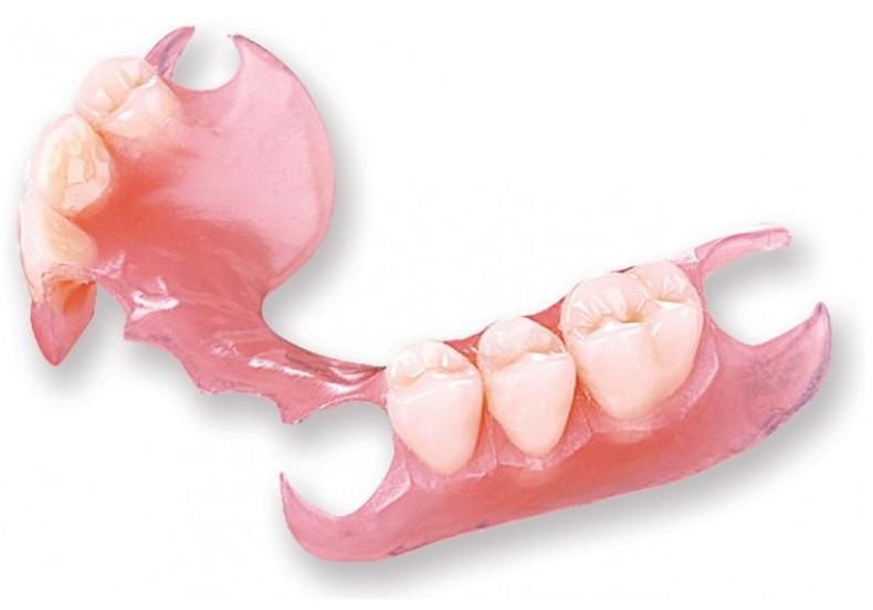 Răng giả tháo lắp nền nhựa