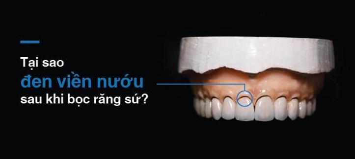 Răng sứ bị đen viền nướu – Tại sao và khắc phục bằng cách nào ?