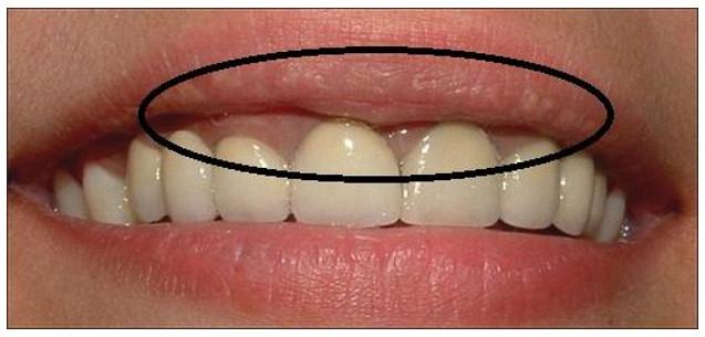 Răng sứ bị đen viền nướu