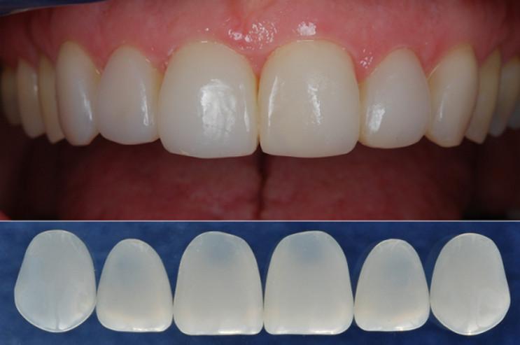 Răng sứ Titan có độ thẩm mỹ cao, màu sắc tương đương răng thật