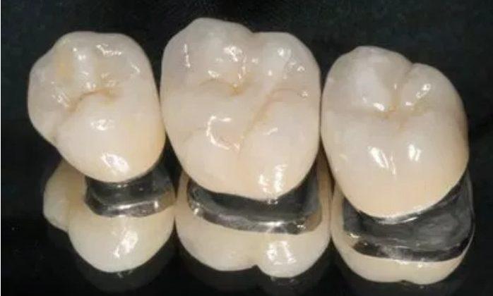 Răng sứ Titan có tốt không? Sử dụng được bao lâu?