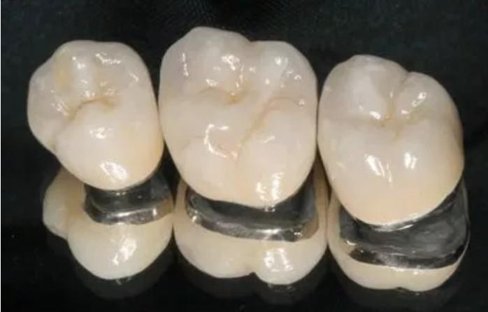 Làm răng sứ Titan đang được nhiều người ưa chuộng