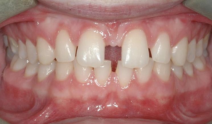 Niềng răng thưa là gì? Tại sao nên niềng cho răng thưa?