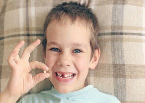 Những điểm cần lưu ý khi nhổ răng sữa cho bé