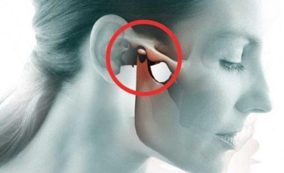 Trật hoặc sai khớp thái dương hàm rất nguy hiểm