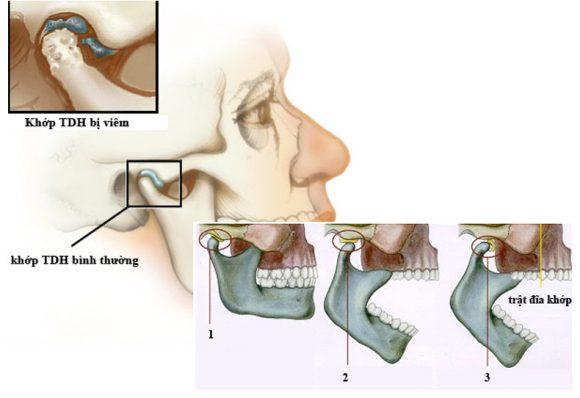 Hình ảnh minh họa viêm khớp thái dương hàm phải