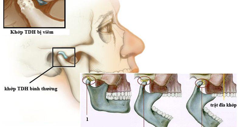Nguyên nhân và cách điều trị bệnh viêm khớp thái dương hàm