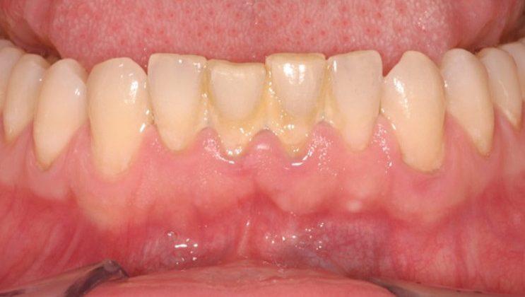 Sự thật về cạo vôi răng có thể bạn chưa biết