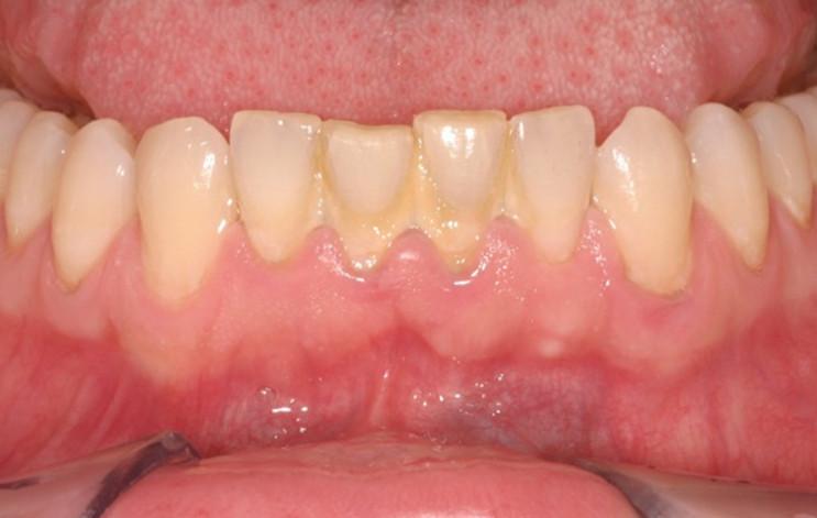 Mảng bám cao răng tạo vôi răng