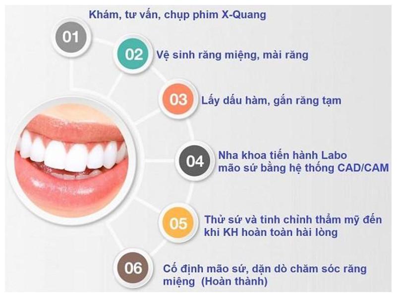 6 bước để giải đáp câu hỏi dán răng sứ Veneer có tốt không