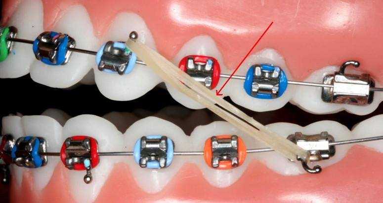 Cách thức nẹp răng phổ biến