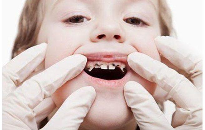 Một số cách điều trị tủy răng sữa khoa học