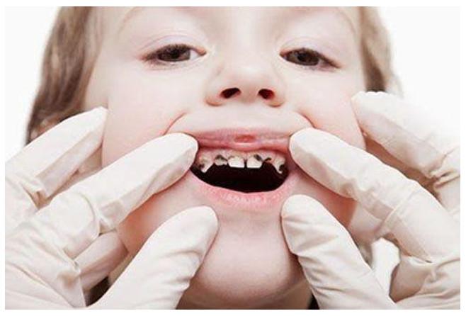 Vì sao nên điều trị tủy răng sữa cho bé?