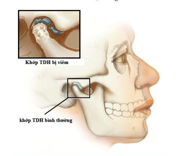 Viêm khớp thái dương hàm có chữa được không?