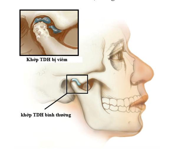 Bệnh viêm khớp thái dương hàm gây ảnh hưởng đến cuộc sống hàng ngày của người bệnh