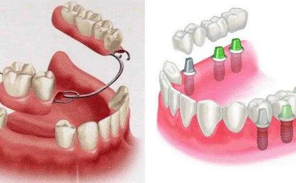Nên làm răng giả tháo lắp hay cố định khi bị mất 1 hoặc nhiều răng ?