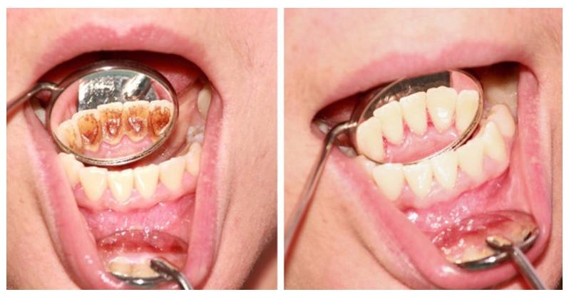 Lấy cao răng và những sự thật có thể bạn chưa biết