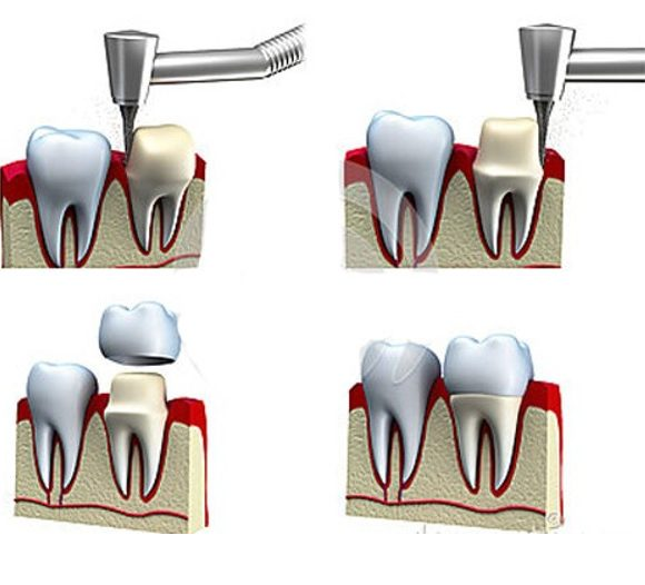 Mài răng bọc sứ có nên không và giá bao nhiêu?