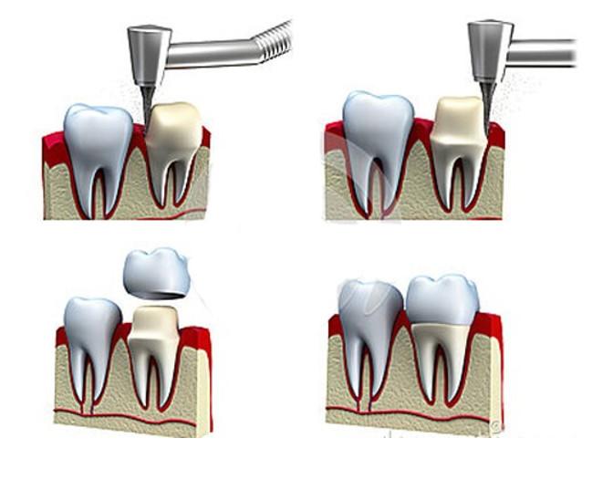 Mài răng bọc sứ giúp bảo vệ răng thật bên trong