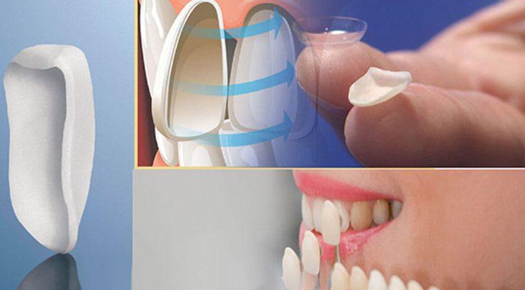 Phương pháp thẩm mỹ dán răng sứ Veneer có tốt không?