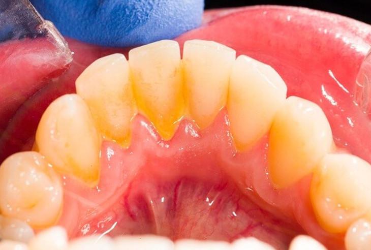 Nguy hại của việc không lấy cao răng