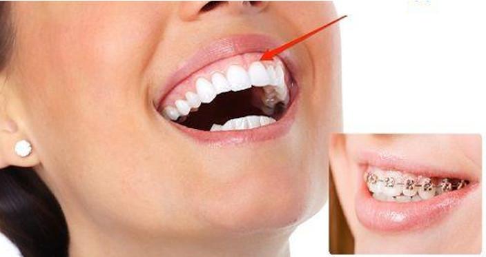 Niềng răng xong bị hở lợi, nguyên nhân và giải pháp khắc phục.