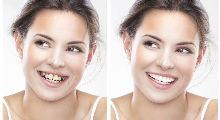 Niềng răng loại nào nhanh nhất mang lại hiệu quả cao