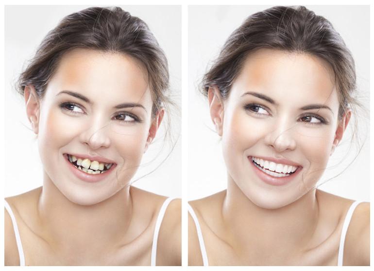 Niềng răng phương pháp chỉnh nha hiện đại nhất hiện nay giúp bạn sở hữu hàm răng thẳng đều và trắng sáng