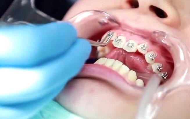 Một số nguyên nhân niềng răng xong bị hở lợi