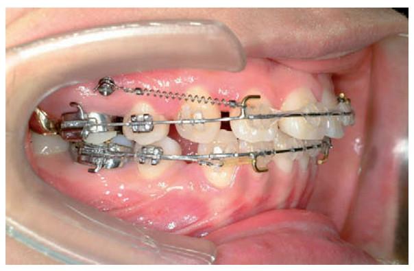 Phẫu thuật chữa răng hô nhanh chóng, hiệu quả