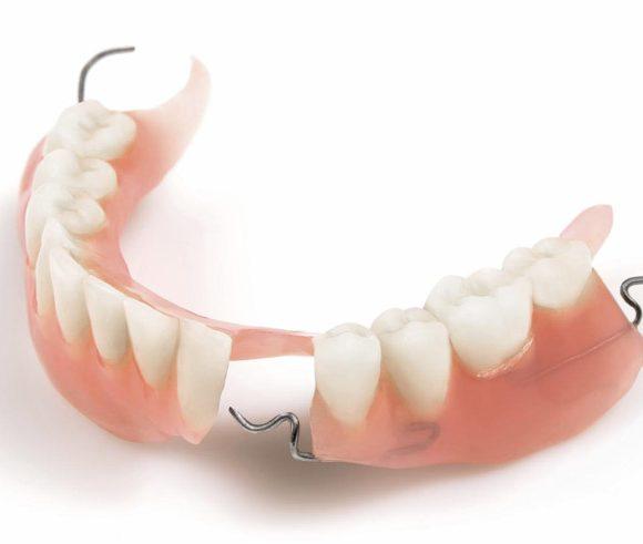 Những điều không phải ai cũng biết về răng giả tháo lắp 1 chiếc