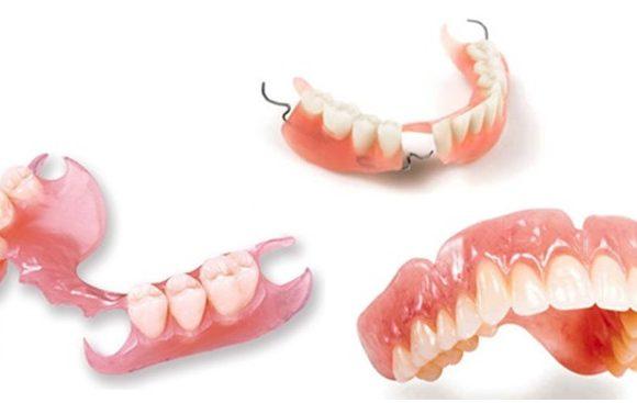 Có nên làm răng giả tháo lắp nhựa dẻo?